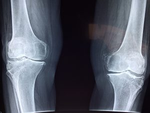 Knochenschwäche